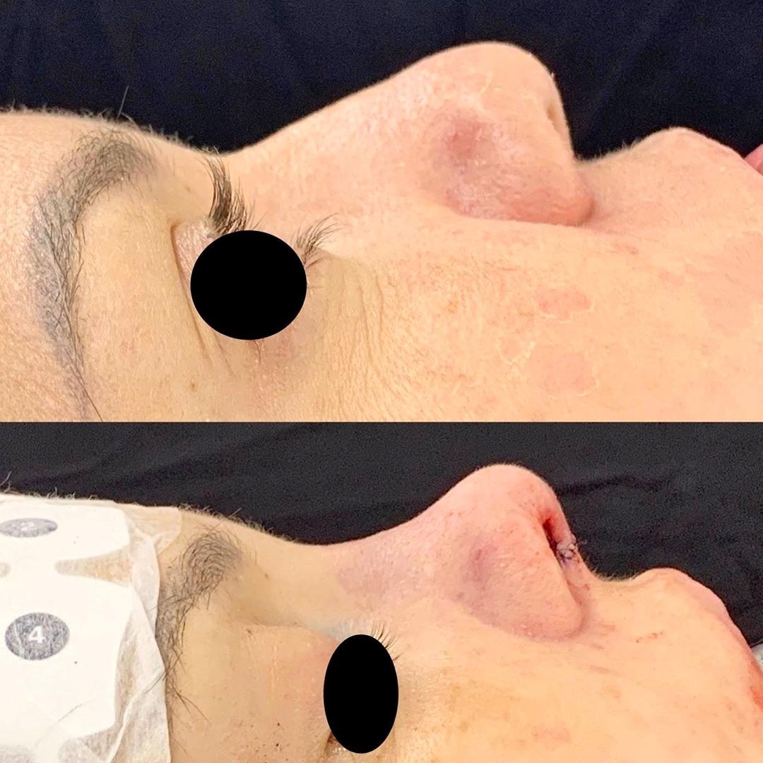 Rinoplastia secundária após estigmas da primeira cirurgia