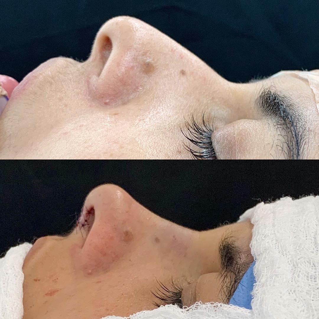 Paciente com queixa de giba nasal e ponta caída
