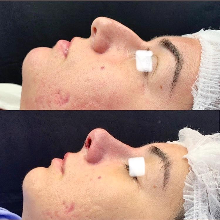 Paciente dessa semana se queixava de dorso nasal elevado e ponta caída