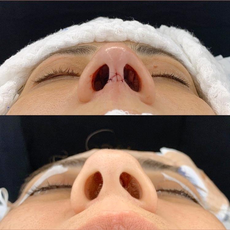 Rinoplastia aberta é uma técnica na qual há uma pequena incisão na columela nasal
